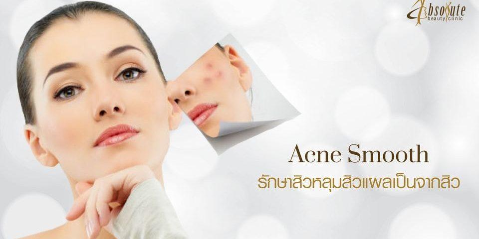 รักษาสิว acne treatment